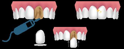 Soluciones para dientes rotos