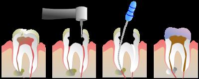 Cuando la caries es profunda y daña el nervio de tu diente la endodoncia es la alternativa a la extracción dental
