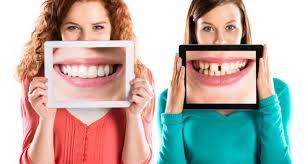 sonrisa dientes torcidos risa ortodoncia