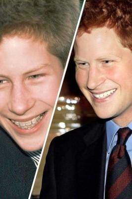 Boda Harry ortodoncia precio la sonrisa ortodoncia invisible