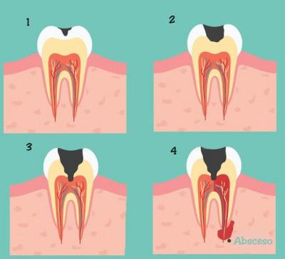 dientes_caries_diente_nervio_cuesta_reparar