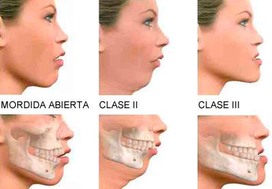 mordida_dientes_sonrisa_torcidos_dentista_Madrid_caries_dolor_bruxismo_molestias_articulación_ortodoncia_dolor_boca